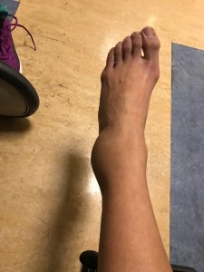 6b-pic-sprained-ankle